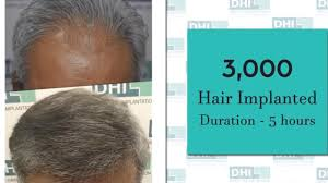hair transplant result in mauritius