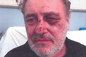 Detectives offer £3,000 reward for information after man stripped naked,  tasered and beaten in 'horrifying' assault | London Evening Standard