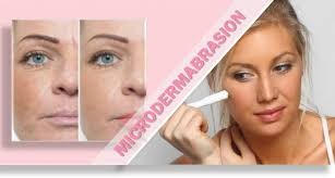 home microdermabrasion reduce face