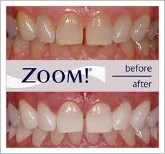 watkin osorio dental ociates take