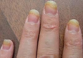 home remes for nail fungus nail