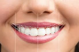 Smile Design In Eatons Hill | Emergency Dentiists In Eatons Hill