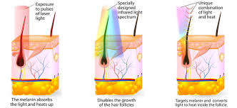 ipl shr laser hair removal suppliers