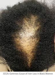 dr donovan s hair loss articles 2016