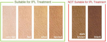 reviews for rio ipl pro hair removal