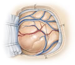 Low Grade Glioma | The Neurosurgical Atlas, by Aaron Cohen-Gadol, M.D.