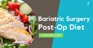 bariatric surgery post op t guide