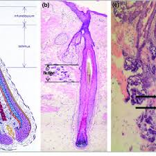 a hair follicle anatomy from whiting