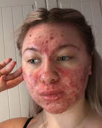 Student who covers acne with makeup refuses to date in case men feel  'catfished'