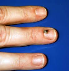 subungual hematoma black bruised