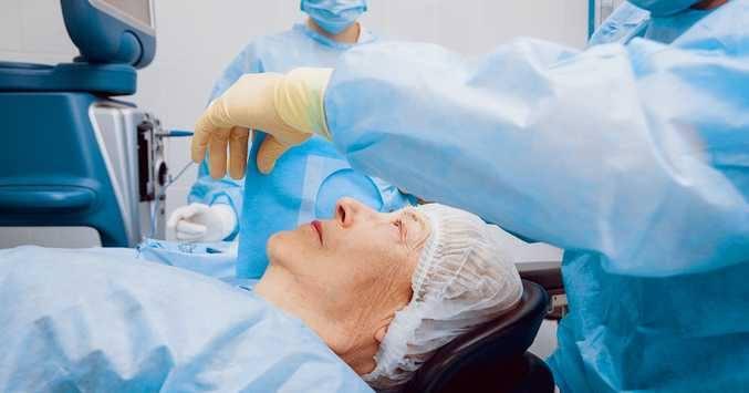The Basics of Cataract Surgery