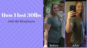 how i lost 30 pounds fast with the