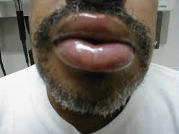 angioedema acute swelling of the lips