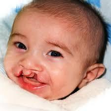 cleft lip palate ociation
