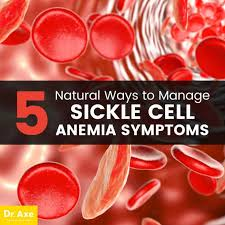 sickle cell anemia 5 natural