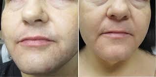 gentlelase laser hair removal photo
