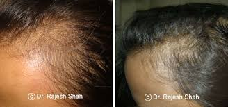 hair loss before and after treatment