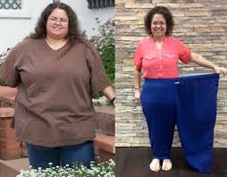 gastric sleeve weight loss story dfw texas