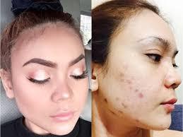 bekas jerawat menggunakan makeup
