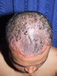 do hair dyes cause scalp psoriasis in man