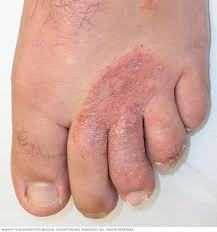 home remes fighting foot fungus