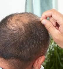 dr bisanga fue hair transplant