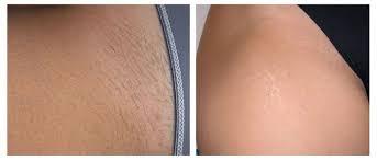 renova laser hair removal