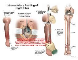 amicus surgery tibia rod nail