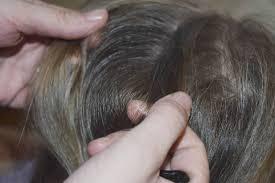 head lice making rounds says stellarton