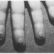 Demarcated areas with dried inocula (10 ,u) on the fingerpads. | Download  Scientific Diagram