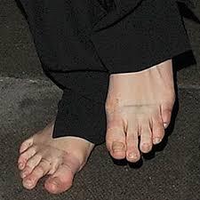 26 ugly celebrity feet nasty corns and