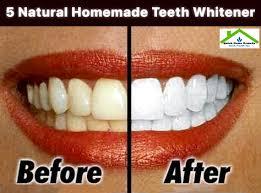 5 natural homemade teeth whitener
