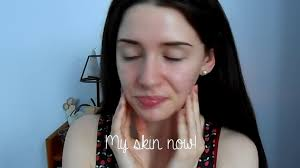 how to cover acne scars easy makeup