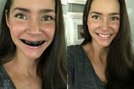 how to whiten teeth naturally with