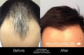 neograft hair transplantation in