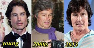 Ronn Moss Plastic Surgery – The Fading Beauty - Ronn Moss Plastic Surgery –  The Fading Beauty