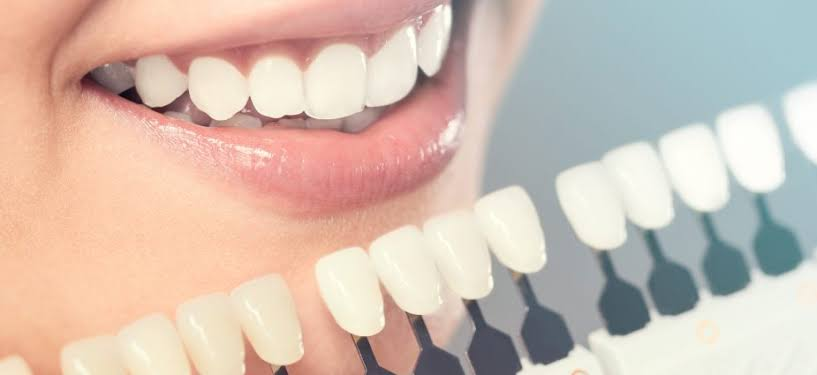 """Image result for Bite Down on Dental Trends"""""""