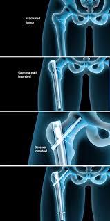 femur fracture fixation stryker gamma