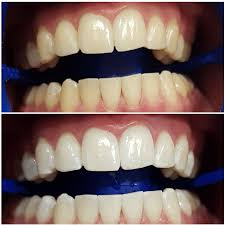 teeth whitening perth professional