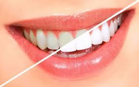 Teeth Whitening Home Kits - Round Rock Dentist - NuYu Dental
