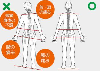 """「身体 歪み」の画像検索結果"""""""