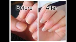 how to grow your nails faster you