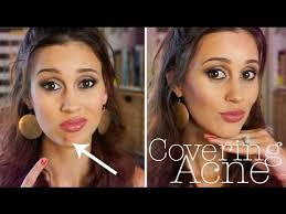 how to cover a pimple flawlessly you