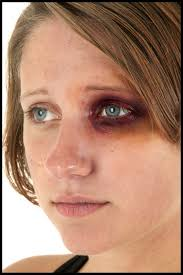 how to make a black eye without makeup
