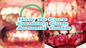 fastest way to treat swollen gums