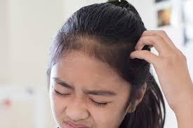 hair styling tricks for psoriasis