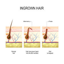 5 tips ingrown hairs on your private