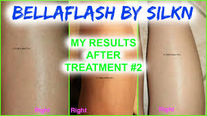 hair removal system by silk n
