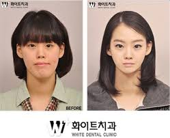 before after images expose south korea