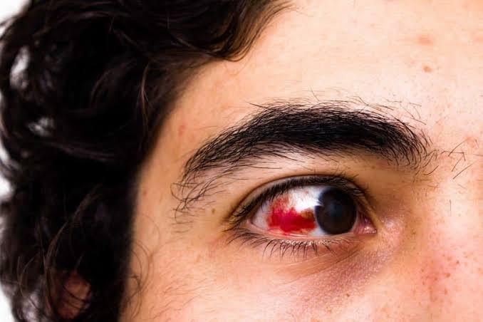 kerusakan mata akibat diabetes